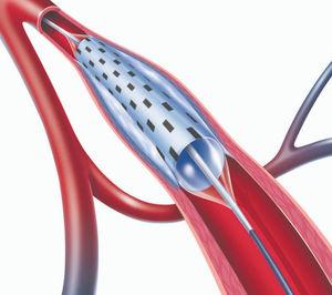 cateter de dilatação para PTA
