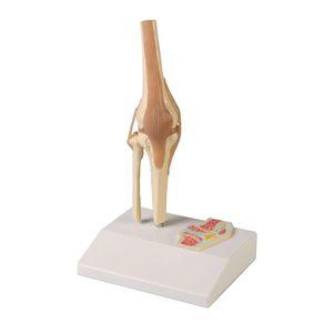 modelo de articulação