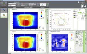 software para radioterapia