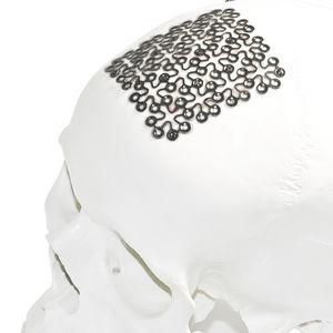 implante craniano