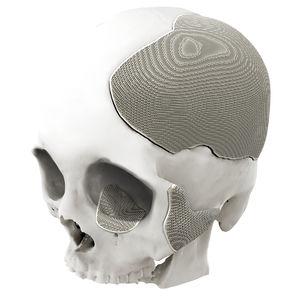 implante craniano sob medida