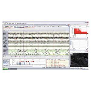 software para polissonografia