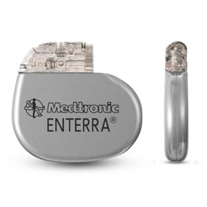neuroestimulador implantável