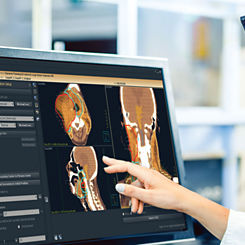 software para oncologia