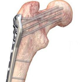placa de compressão óssea de fêmur
