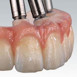 material dentário em zircônia / para restauração dentária / de CAD/CAM / para pontes dentárias