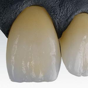 material dentário em zircônia