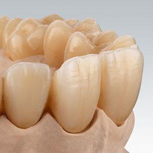 material dentário em dióxido de zircônio / para restauração dentária / de CAD/CAM / altamente translúcido