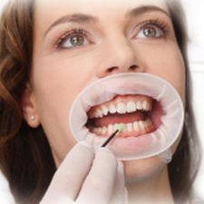 afastador de bochecha / labial / odontológico