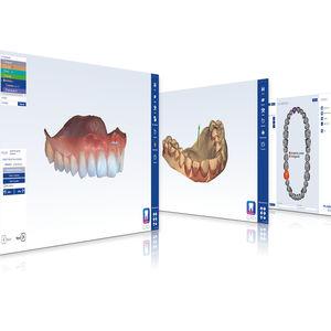 software de concepção de prótese dentária