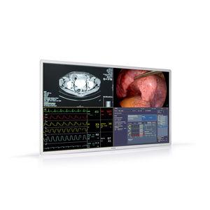 monitor cirúrgico