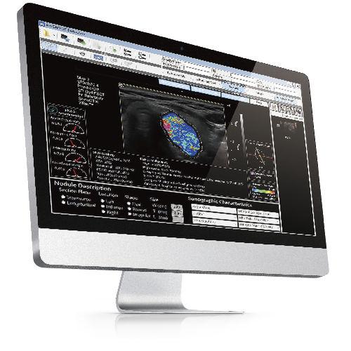 software para ecografia