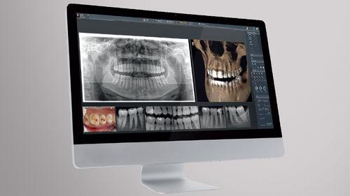software para imagiologia dentária