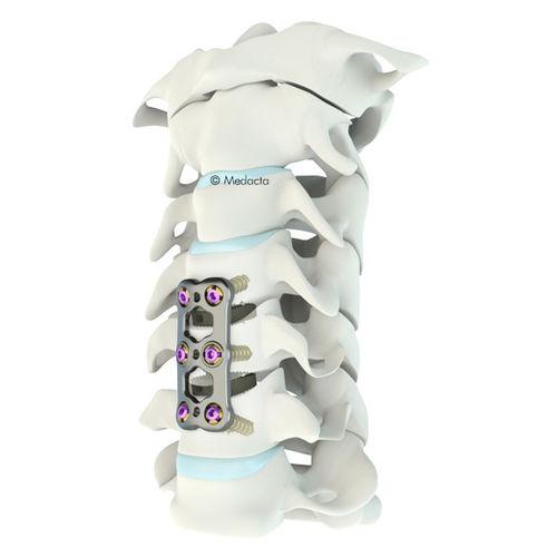 placa para artrodese cervical