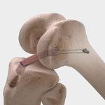 prótese ligamentar para ligamento cruzado anterior / para ligamento cruzado posterior / sintética
